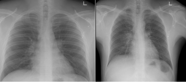(L) Normal Chest X-Ray  (R) Abnormal Chest X-Ray