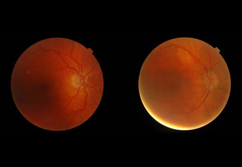 Using AI to interpret eye images for major health risks